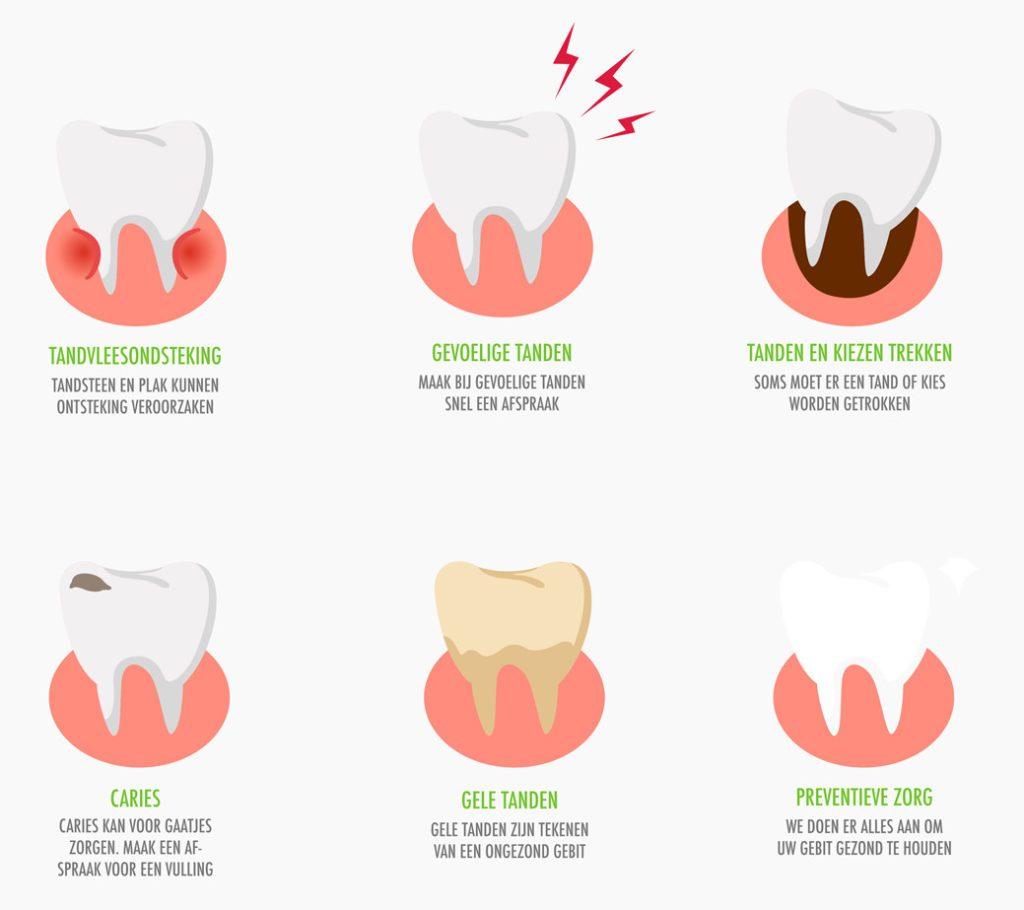 Tandvleesontsteking voorkomen